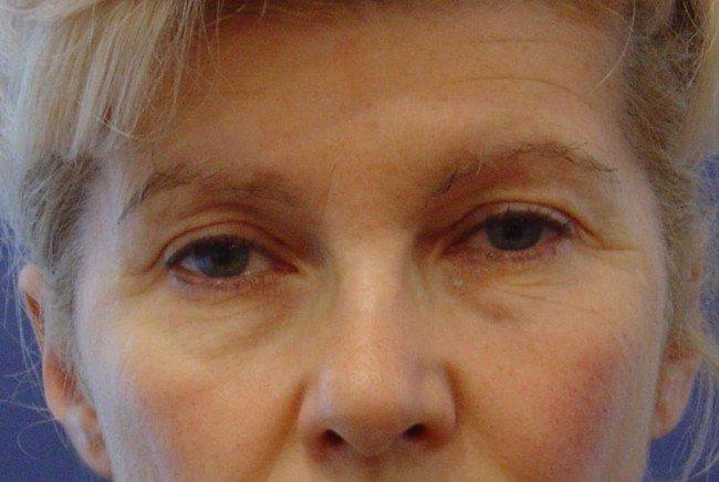 Trucco palpebre cadenti - In alcuni casi la palpebra cadente è dovuta all'età